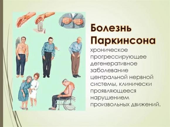 Перхоть – это плохо. «Ошмётки» на голове могут быть симптомом болезни Паркинсона